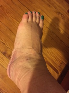 A little less ginormous foot.